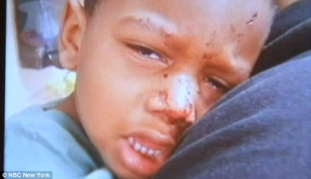 RATS Attacked A 3yr Old Autistic Boy In His Sleep